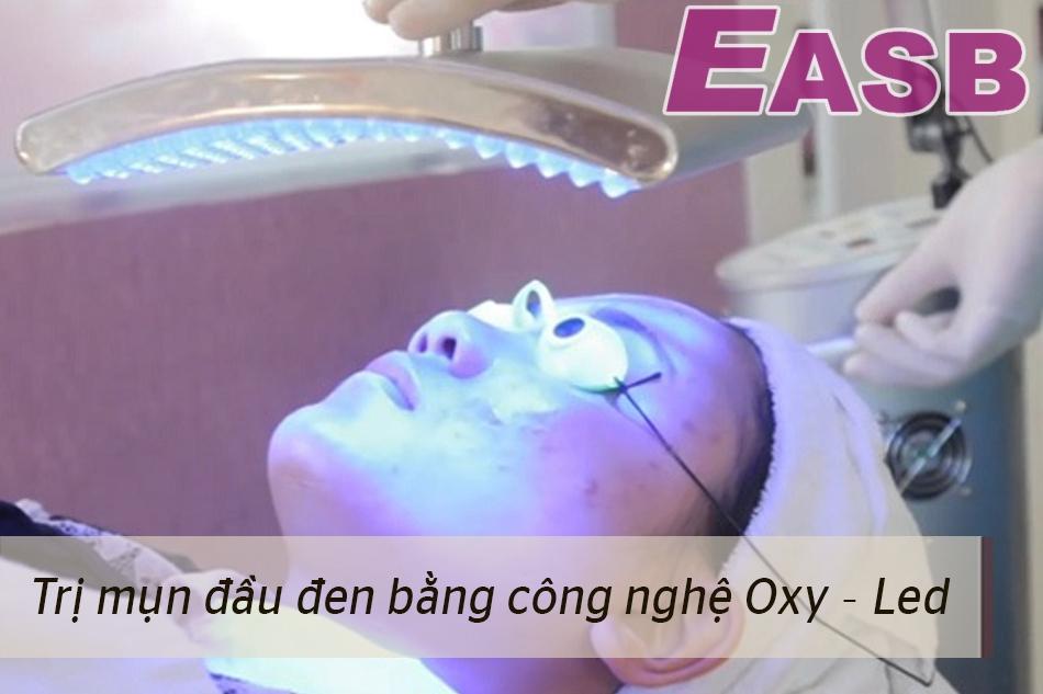 Trị mụn đầu đen bằng công nghệ Oxy - Led