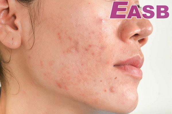 Đặc điểm của da dầu, da mụn (dễ nổi mụn)