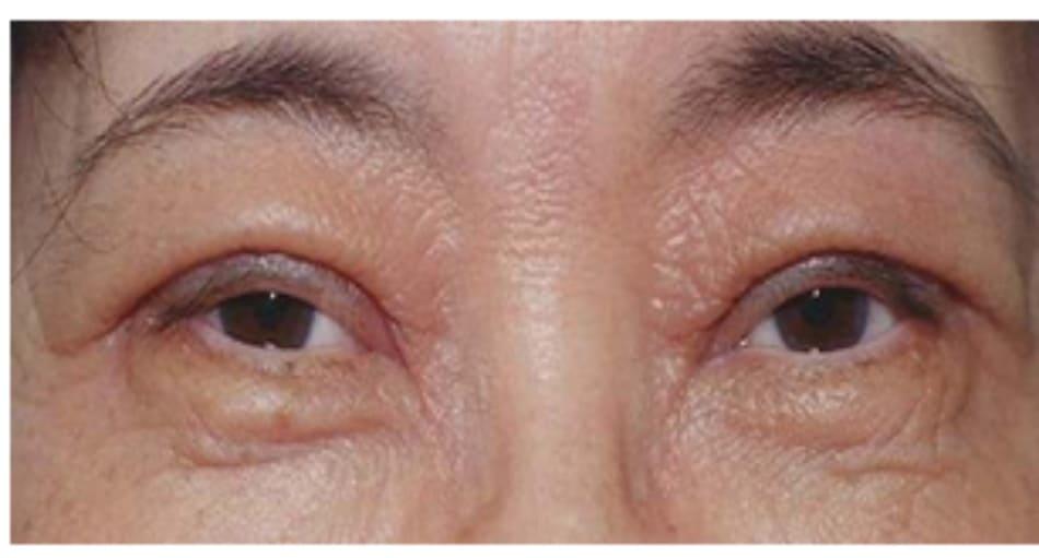 Hình 13-1 Dày mí mắt hậu phẫu kéo dài.