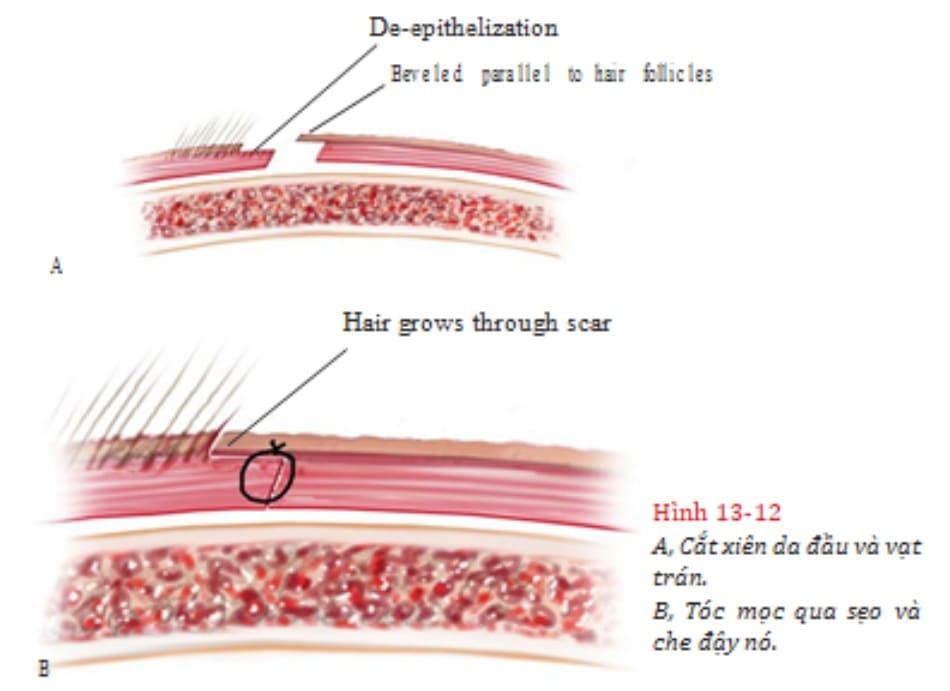Hình 13-12 A, Cắt xiên da đầu và vạt trán. B, Tóc mọc qua sẹo và che đậy nó.
