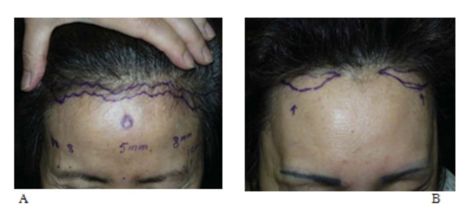 Hình 13-13 A, Nâng trán trước đường chân tóc là một biện pháp thay thế cho cách nâng trán cổ điển với 4 lỗ nội soi. Lượng da trán cần nâng được đánh dấu. Đường rạch được tạo zigzag để che sẹo hậu phẫu. B, Đường rạch trước chân tóc cải biên. Đường rạch tránh đường giữa nơi bệnh nhân thường rẽ tóc khi chải