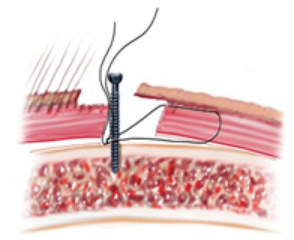 Hình 13-15 Khâu cố định vạt trán trước chân tóc.