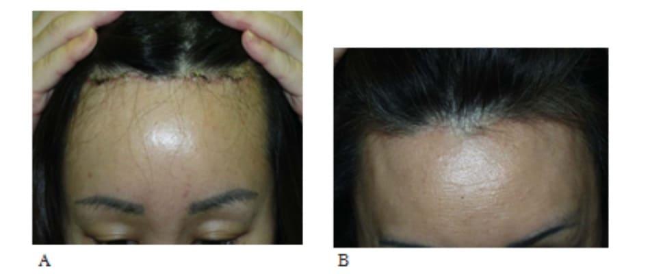 Hình 13-16 A, Ngay sau phẫu thuật. B, Sẹo hậu phẫu thuật khó thấy do tóc mọc che sẹo