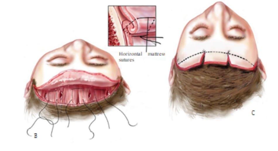 Hình 13-17 (hết) B, Nếp gấp cơ trán với nhiều đường khâu đệm ngang. C, Cắt lọc nhiều da trán.