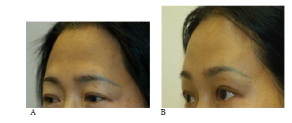 Hình 13-18 A, Hình ảnh tiền phẫu cho thấy nặng mí trên. B, hình ảnh hậu phẫu cho thấy hình ảnh khác biệt khi cung mày được nâng và yên vị phía trên rãnh trên ổ mắt.