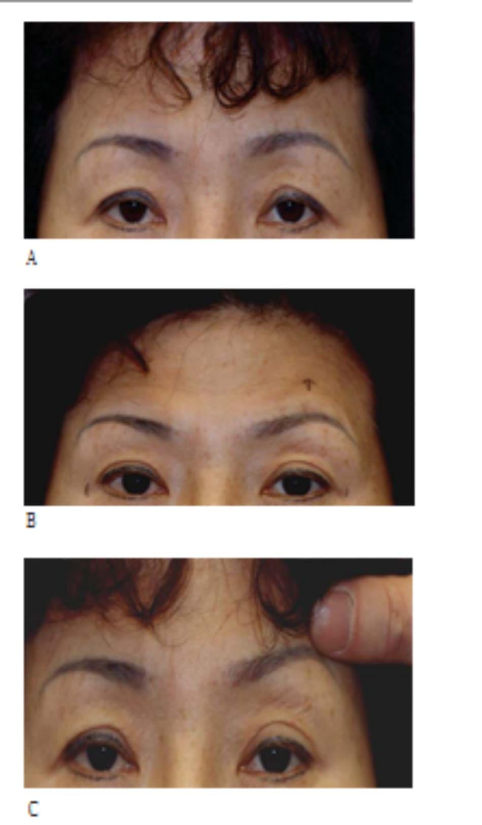 Hình 13-2 A, Rủ vành ngoài là dấu hiệu đầu tiên của lỏng lẻo mí trên. B, Bệnh nhân nhướn mày để minh họa hiệu quả của nâng trán. Nghiệm pháp này giúp xác định cung mày bất xứng, có thể gây bất xứng động hậu phẫu. C, Hiệu quả toàn bộ của nâng trán trên nếp gấp hai mí được minh họa. Nghiệm pháp này là công cụ hướng dẫn tuyệt vời cho những bệnh nhân muốn phẫu thuất mí mắt đơn giản và không tốn kém.