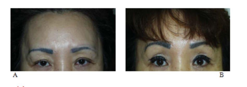 Hình 13-20 A, Dù có nếp gấp hai mí rõ rệt, bệnh nhân này vẫn không hài lòng về cuộc phẫu thuật do dày mí trên. B, Hình ảnh hậu phẫu cho thấy kiểu dáng tươi tắn của vùng quanh ổ mắt.