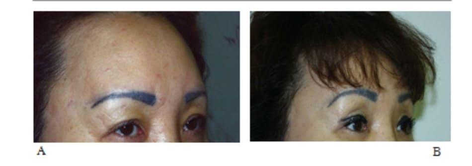 Hình 13-21 A, Tiền phẫu nhìn nghiêng. B, Hậu phẫu nhìn nghiêng.
