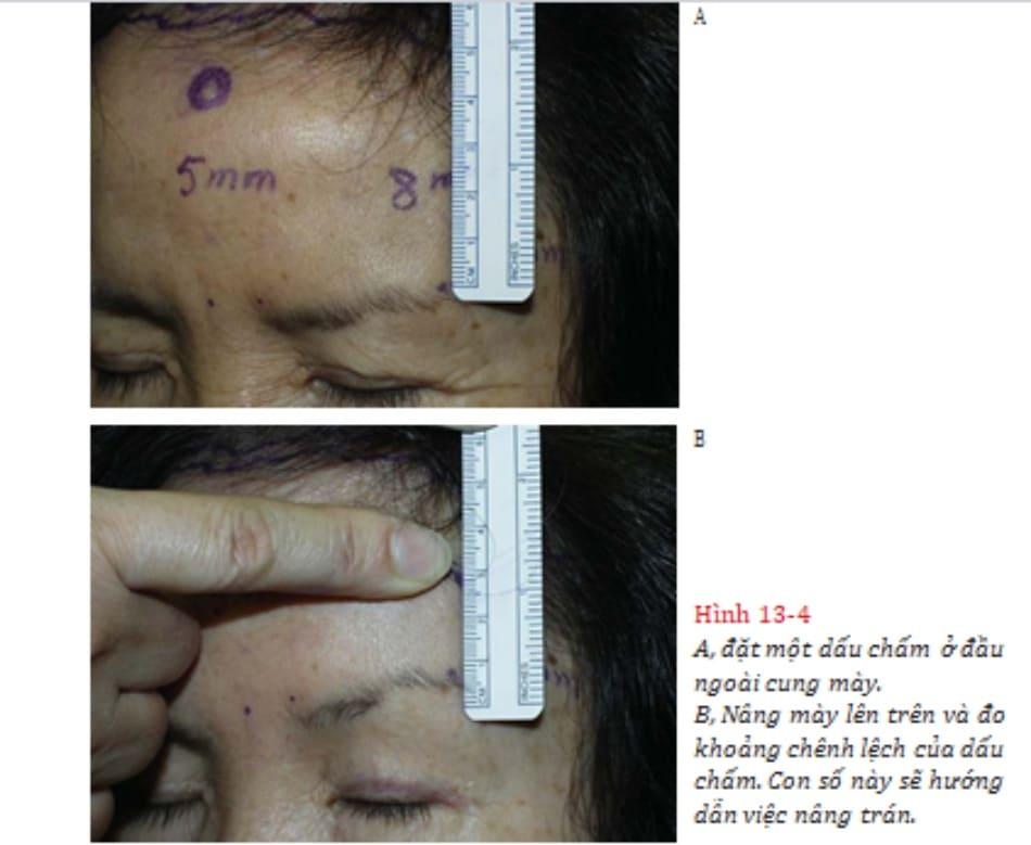Hình 13-4 A, đặt một dấu chấm ở đầu ngoài cung mày. B, Nâng mày lên trên và đo khoảng chênh lệch của dấu chấm. Con số này sẽ hướng dẫn việc nâng trán.