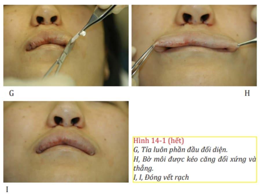 Hình 14-1 (hết) G, Tỉa luôn phần đầu đối diện. H, Bờ môi được kéo căng đối xứng và thẳng. I, Đóng vết rạch.
