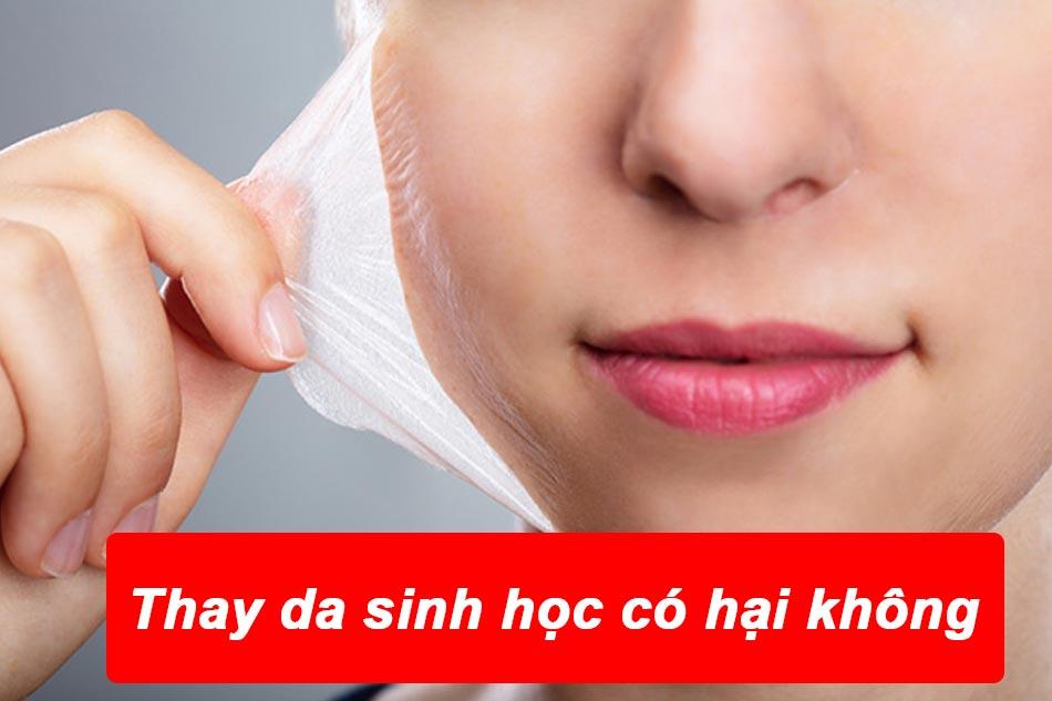 Thay da sinh học collagen có hại không