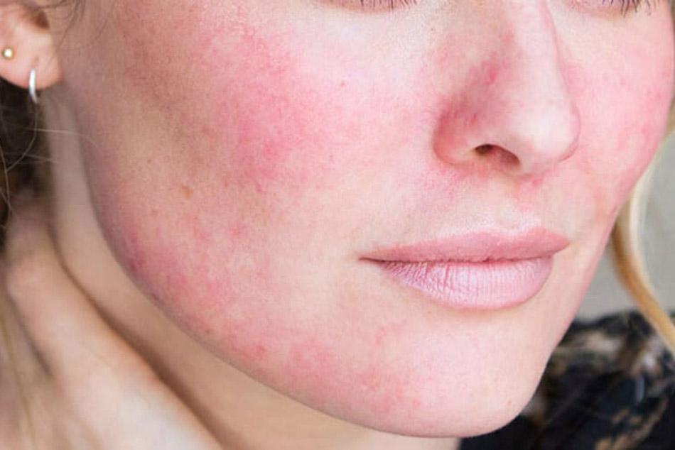 Một số lưu ý khi sử dụng nước tẩy trang cho da nhạy cảm